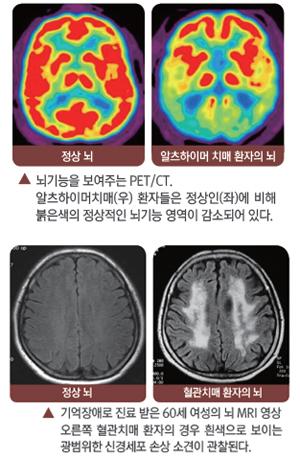 정상외와 알츠하이머 치매 환자의 뇌 사진, 정상뇌와 혈관치매 환자의 뇌 사진